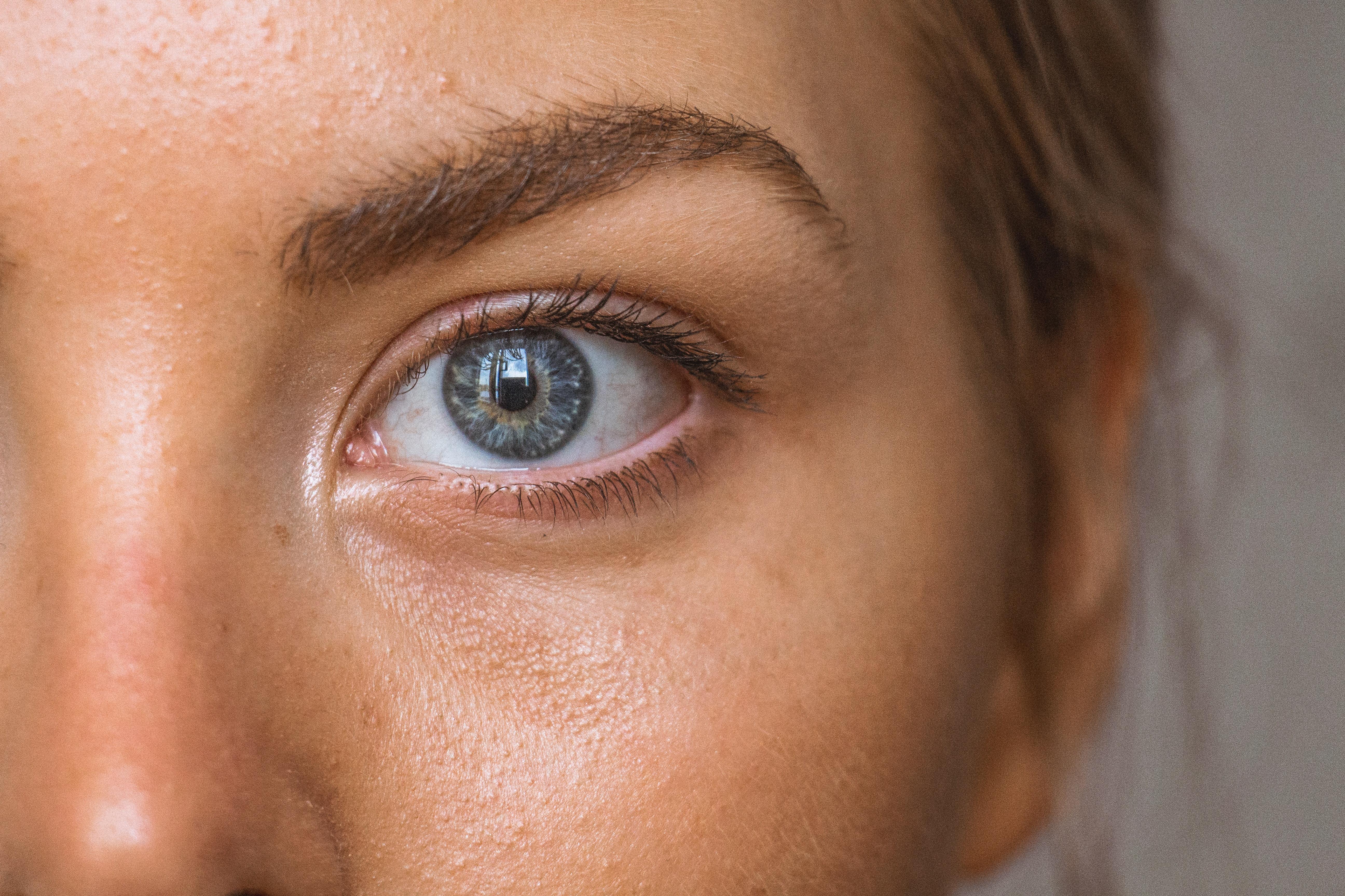 Acne behandling laser